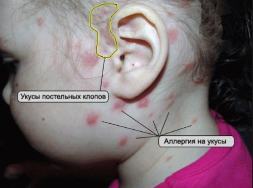 аллергия на лице чем мазать
