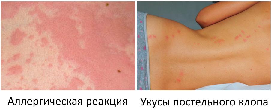 Отличие укусов клопов от аллергической реакции